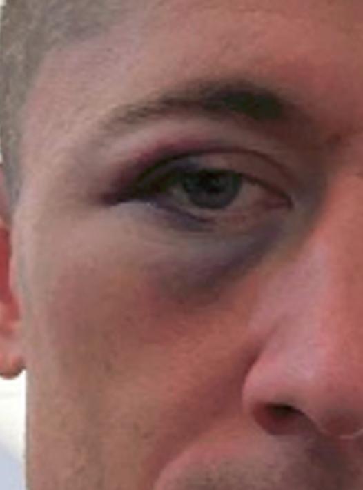 Lewandowski ma PODBITE oko! Co się stało?