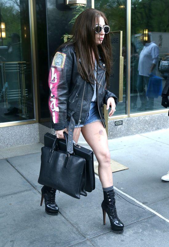 OMG! Co stało się z jej nogami? (FOTO)