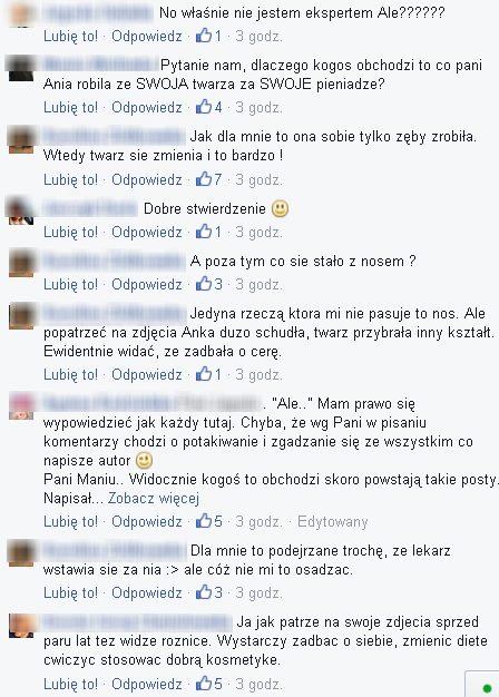Krzysztof Gojdź o operacjach plastycznych Lewandowskiej