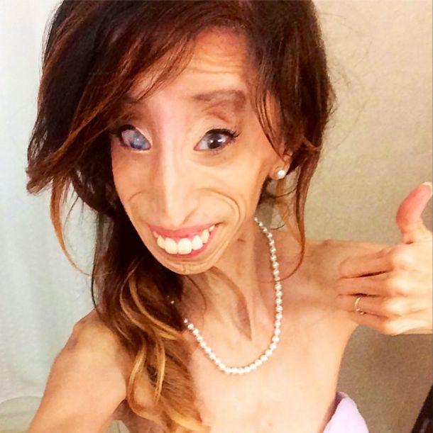 Lizzie Velasquez zwana najbrzudszką kobietą świata... (FOTO)