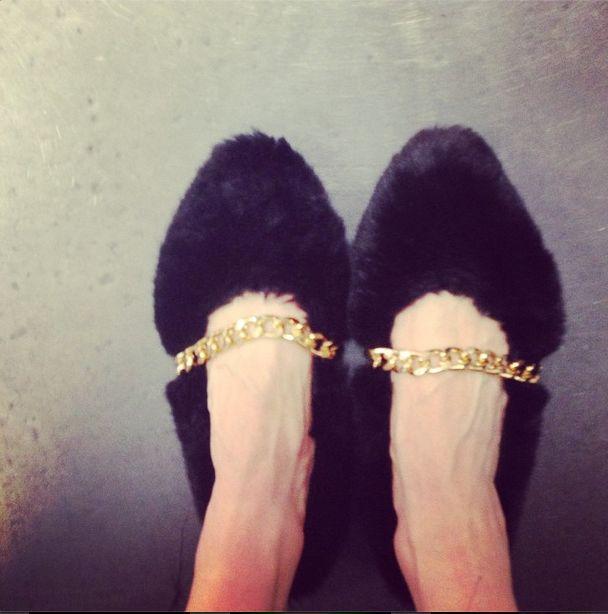 Jej ręce i stopy to same żyły! (FOTO)
