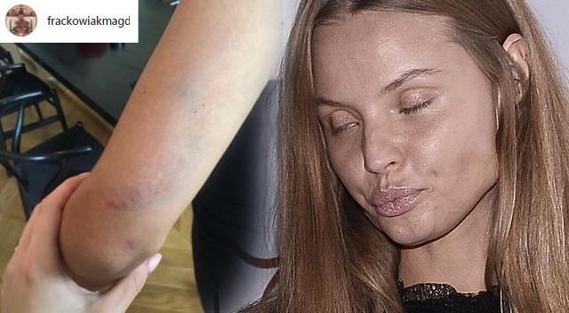 Magdalena Frąckowiak pokazując siniak: Zostałam siłą wyrzucona ze sklepu (Insta)