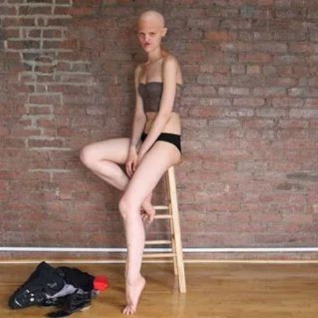 Melanie Gaydos - modelka high fashion z chorobą genetyczną