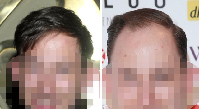 26-letni polski aktor ma problem – traci włosy (ZDJĘCIA)