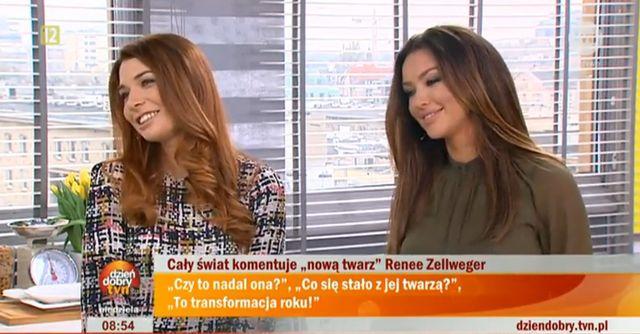 Monika Pietrasińska opowiada o operacjach plastycznych