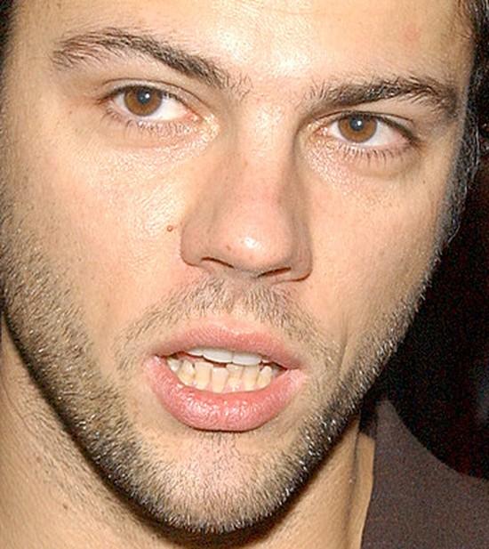 Olivier Janiak: Mam zrobione zęby, bo naturalne były okropne