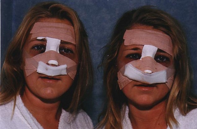 Oto Jo i Kerry Burton - bli�niaczki uzale�nione od operacji