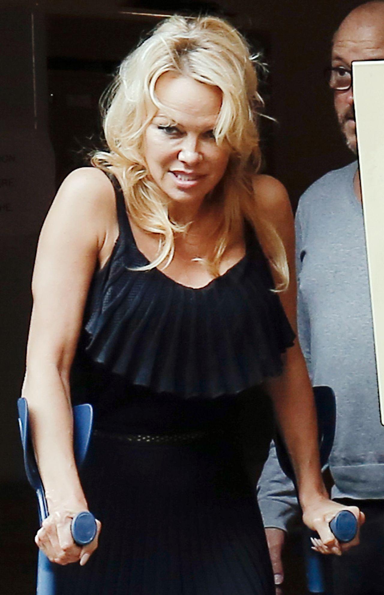 Obolała Pamela Anderson wychodzi od lekarza o kulach (ZDJĘCIA)