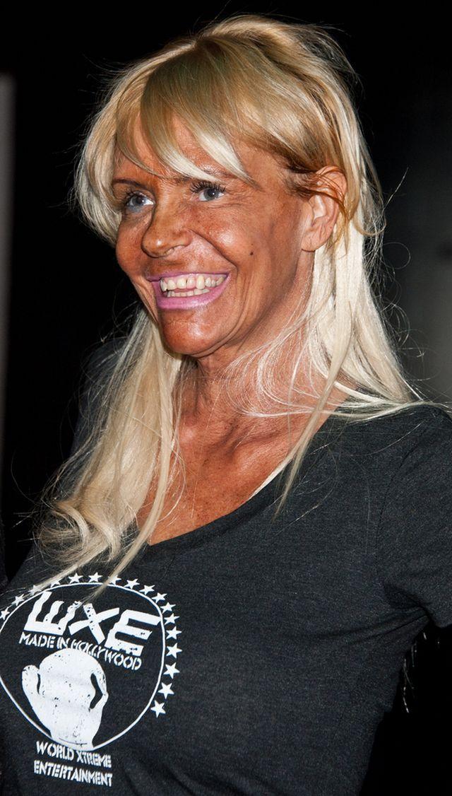 Patricia Krentcil - tej pani nie tylko oczko się zepsuło