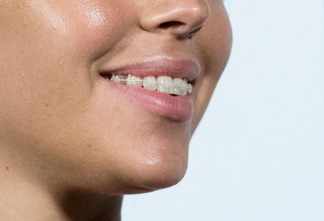 Dziewczyna Cristiano Ronaldo chciała ukryć TO CO MA NA zębach!