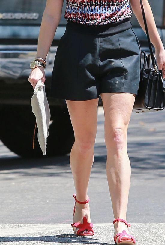 Jej nogi wcale nie są takie idealne (FOTO)