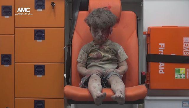 Tragedia tego dziecka jest wstrz�saj�ca (VIDEO)