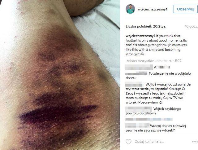 Wojciech Szczęsny pokazał, jak wygląda jego noga! (FOTO)