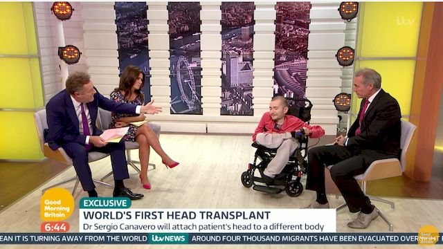 Pierwsza w historii transplantacja CAŁEJ GŁOWY jest możliwa?! (VIDEO)