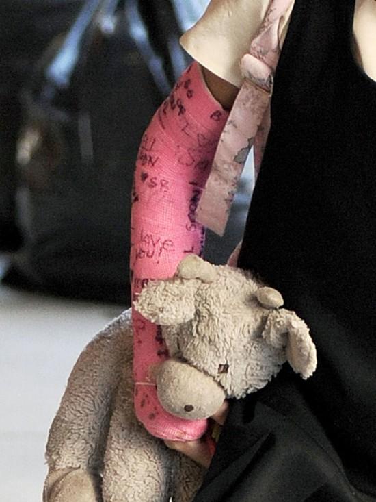 Suri Cruise wie, jak ozdobić złamaną rękę (FOTO)