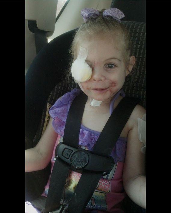 3-letnia Victoria wyproszona z KFC, bo jej twarz straszy