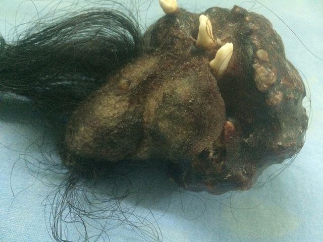 To co lekarze znaleźli w jego żołądku jest przerażające!