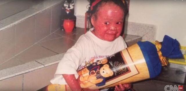 Rodzice porzucili ją, bo przestraszyli się jej wyglądu VIDEO