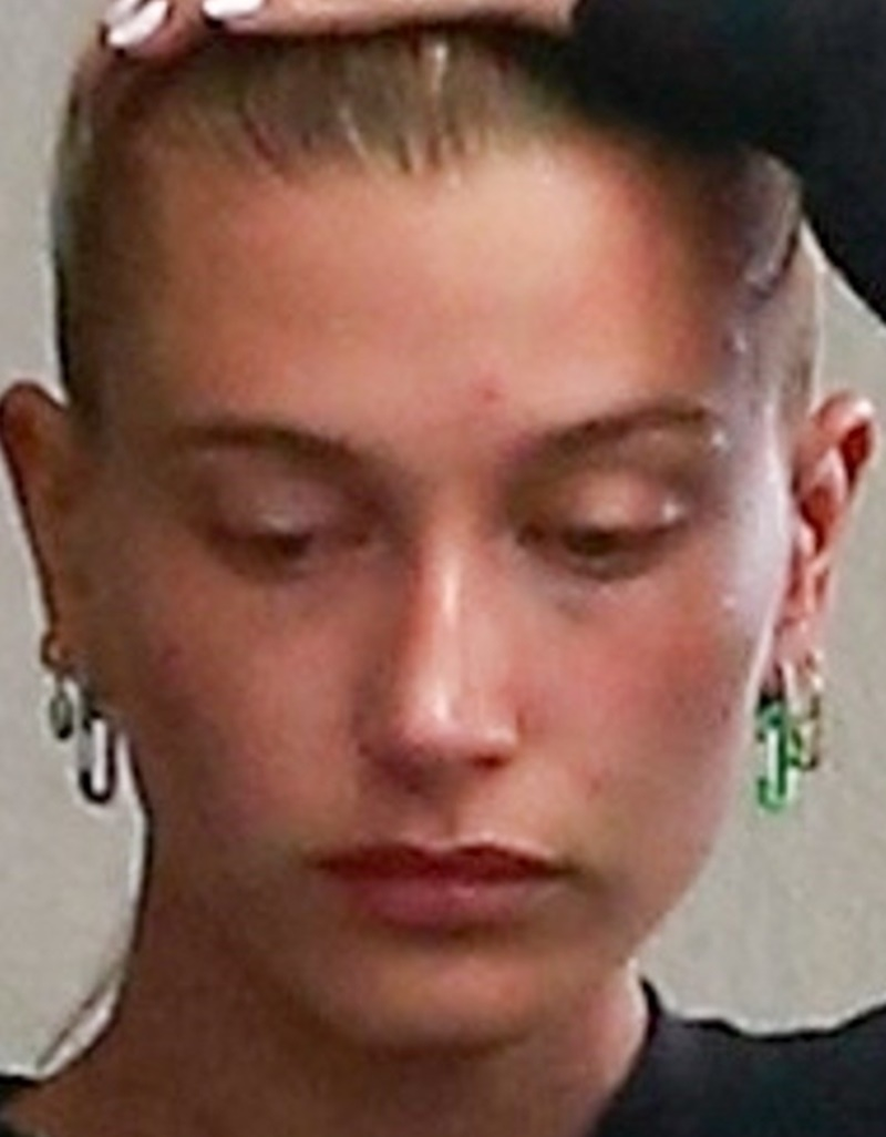 *EXCLUSIVE* Hailey Bieber covers her forehead after a visit to a dermatologist Hailey Bieber