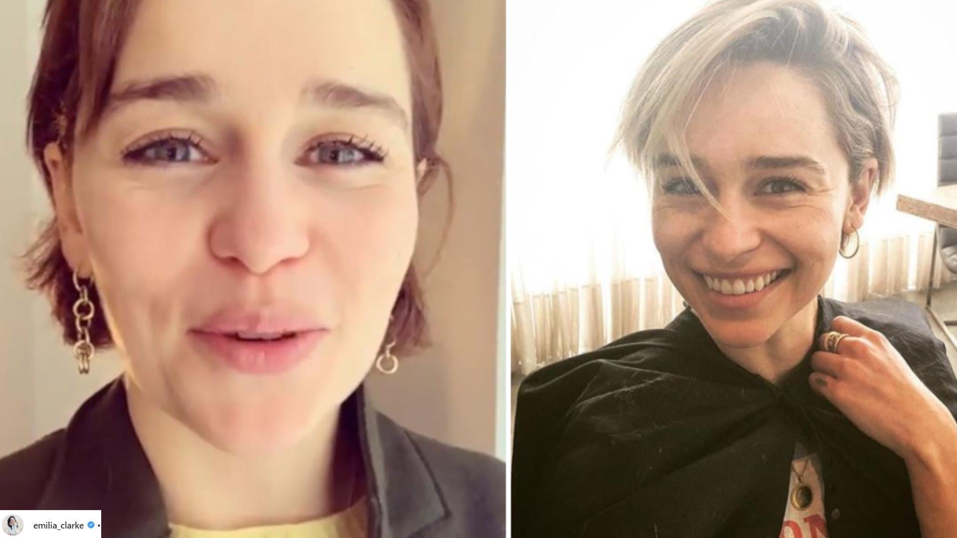 Emilia Clarke pokazała ARCHIWALNE zdjęcia po operacji. Tętniak w mózgu doprowadził ją prawie do śmierci