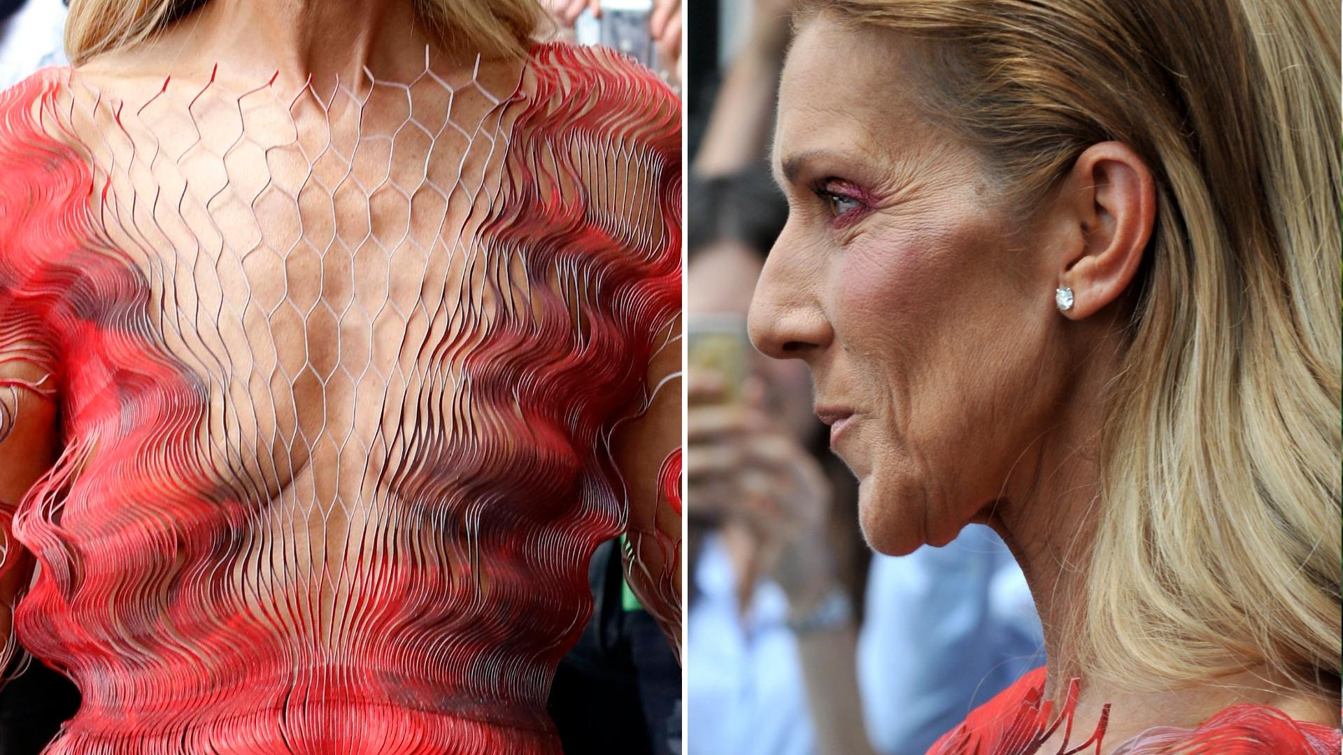 Celine Dion przez utratę kilogramów wygląda na staruszkę (ZDJĘCIA)