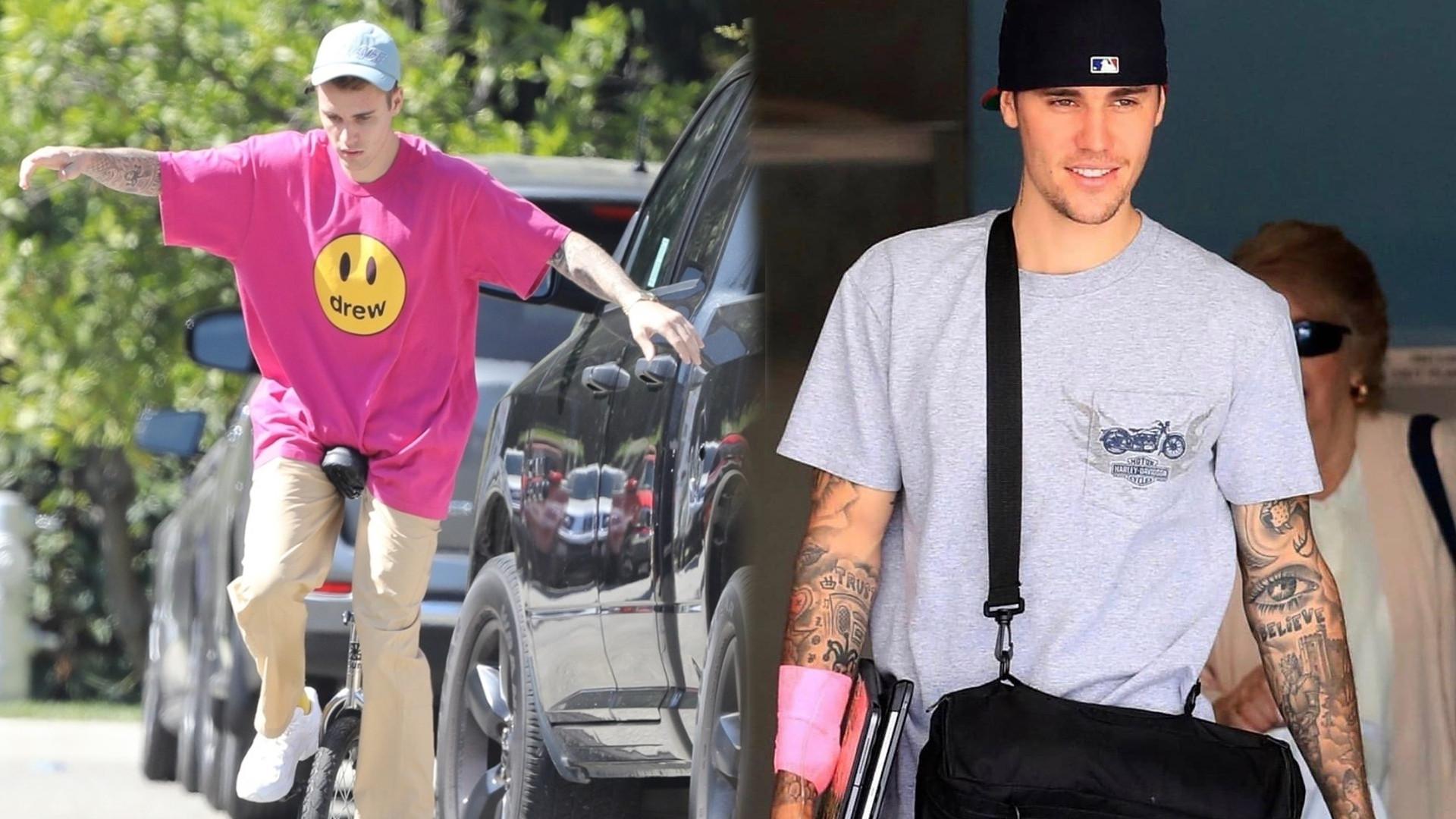 AUĆ! Justin Bieber zaliczył bolesny upadek na monocyklu (FOTO)