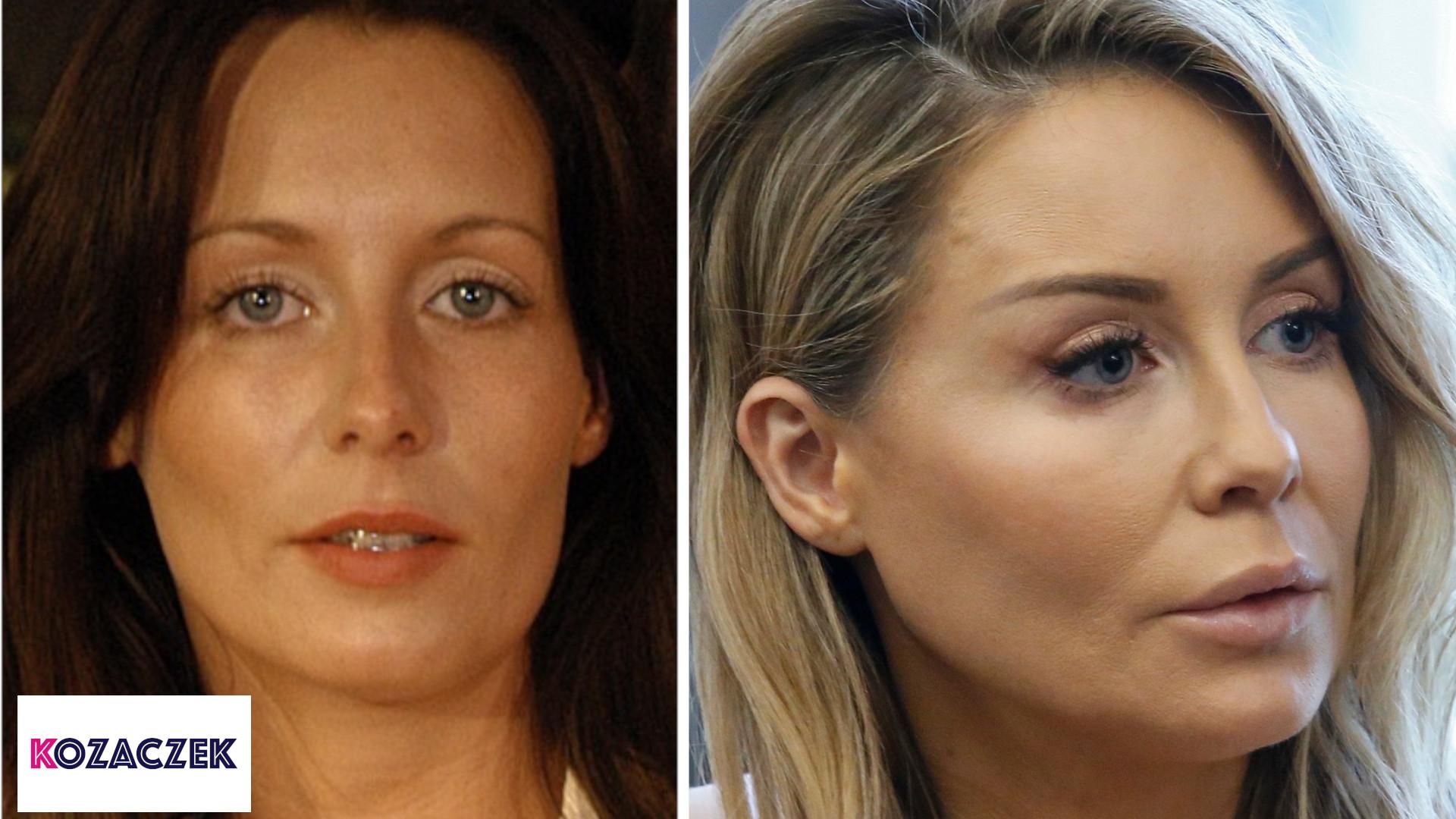 Które polskie gwiazdy powiększały usta? Porównujemy zdjęcia – STARE i NOWE