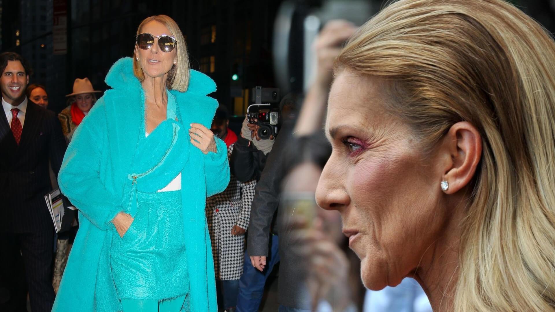 Celine Dion przez koronawirusa musiała odwołać część koncertów, ALE nie w POLSCE
