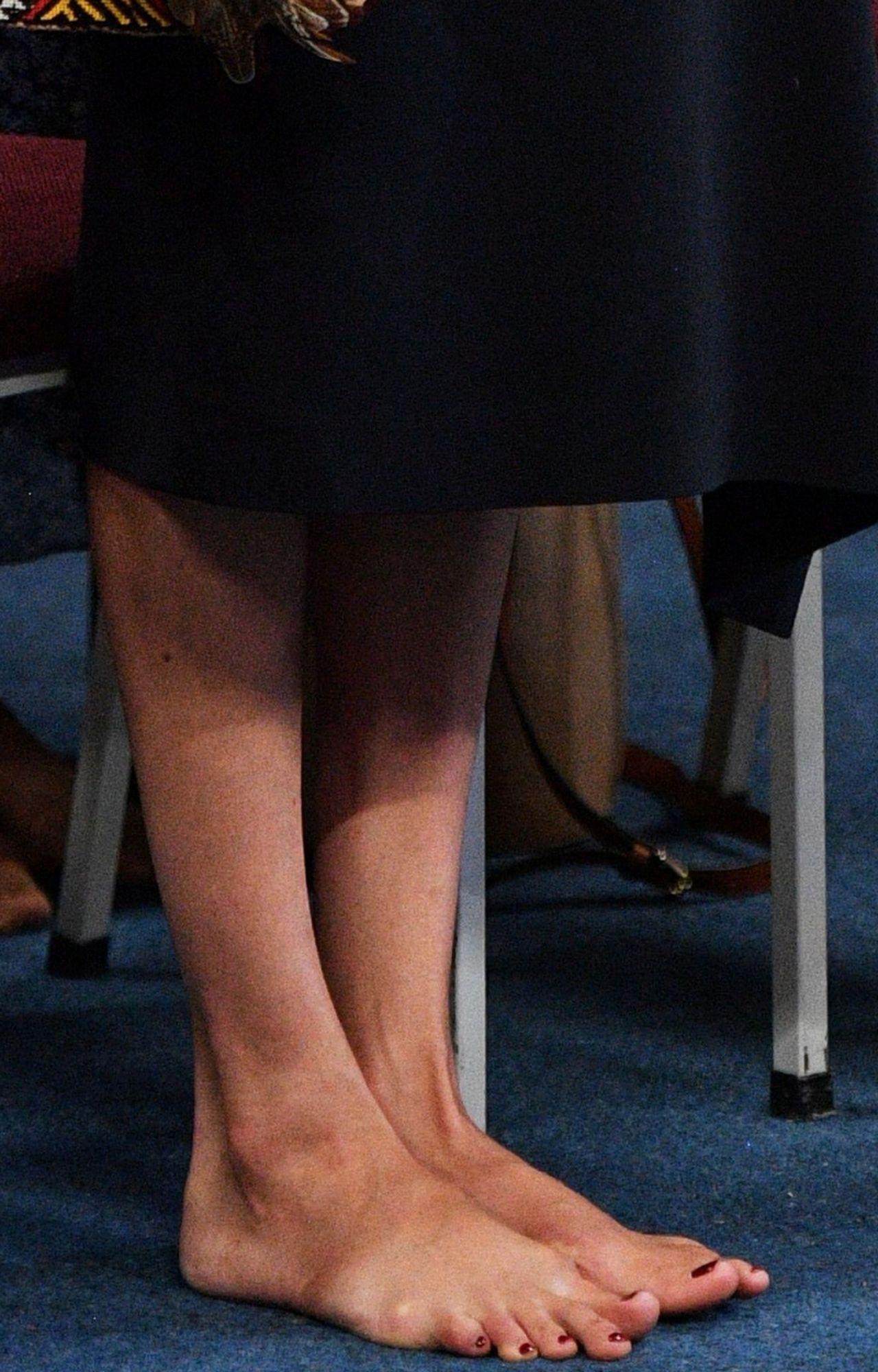 Stopy Meghan Markle - na jednej z nich widać ślady po operacjach - Meghan usuwała haluksy