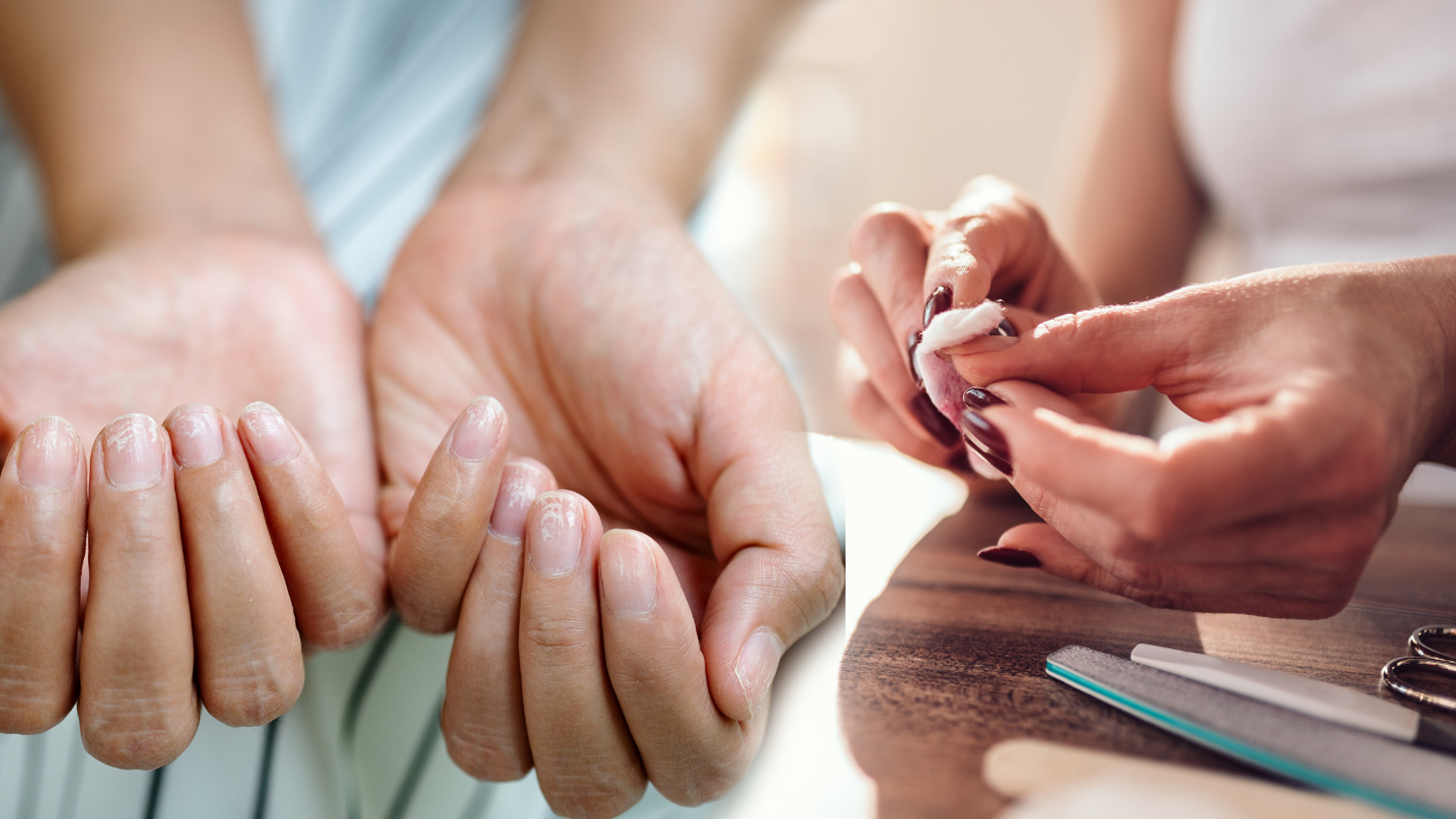 Odrost na paznokciach przeraża – jak usunąć hybrydę, czy żel w domowych warunkach? (PIELĘGNACYJNE ŚRODY)