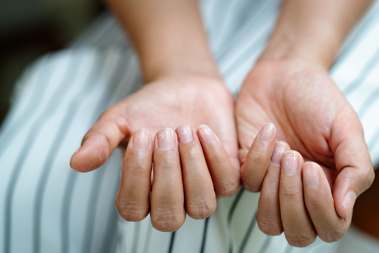 Tak wyglądają zniszczone paznokcie u rąk przez złe zdejmowanie lakieru.