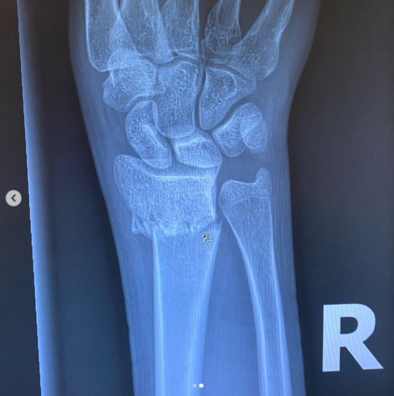 Kaia Gerber złamała rękę podczas siedzenia w domu.