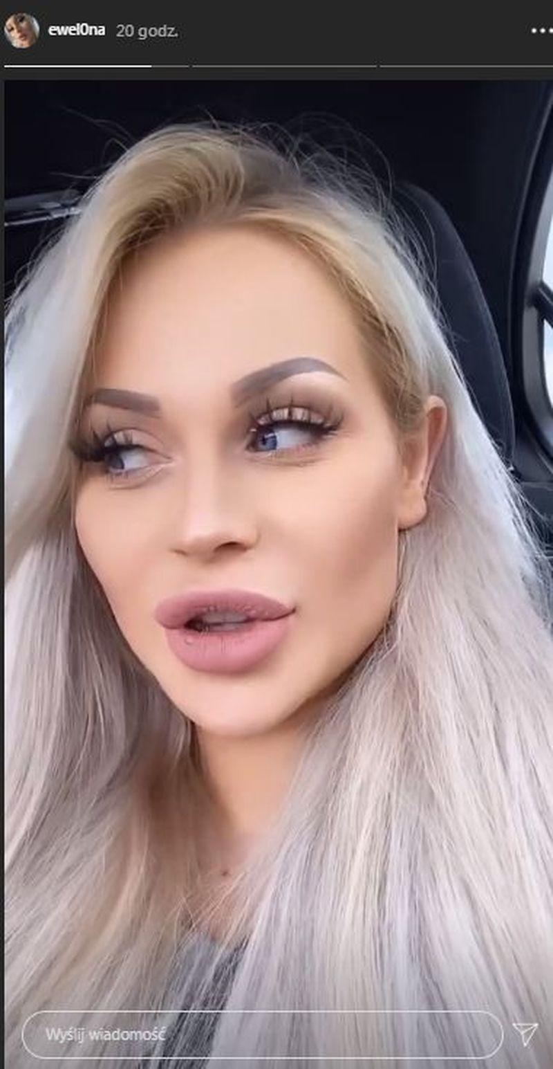 Ewelina Kubiak wraca do domu po operacji powiększenia piersi