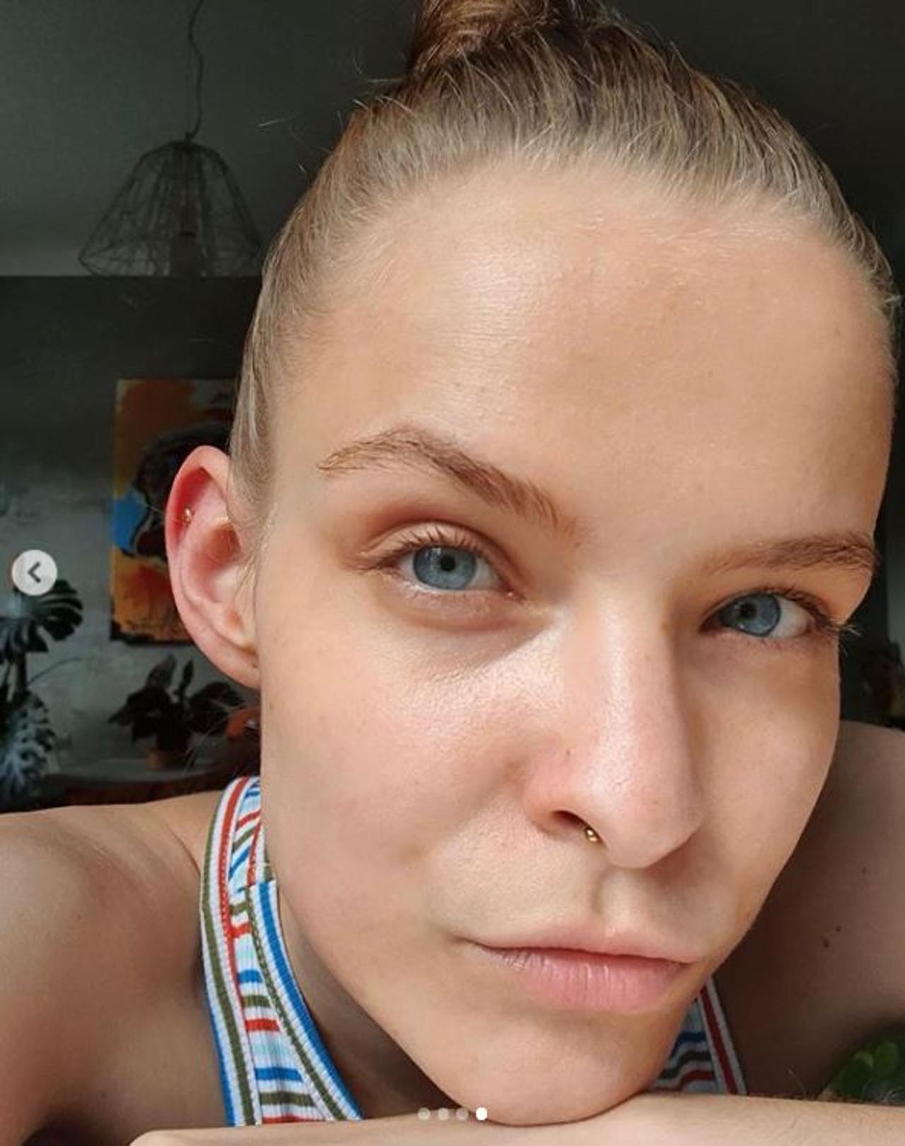 Zuza Kołodziejczyk pokazała, w jakiej kondycji jest jej skóra.