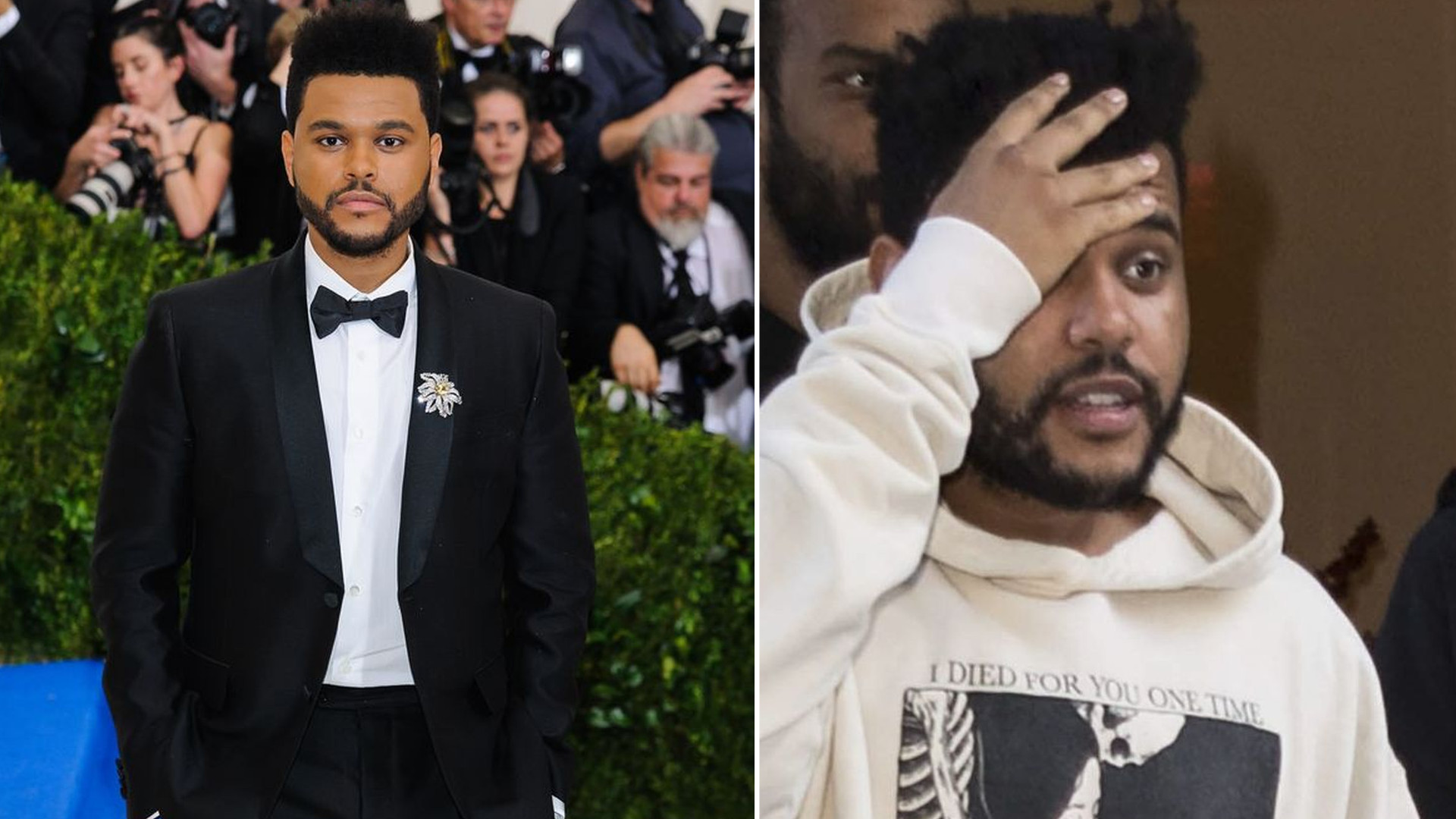 Co się stało z TWARZĄ The Weeknd? Wokalista wygląda PRZERAŻAJĄCO