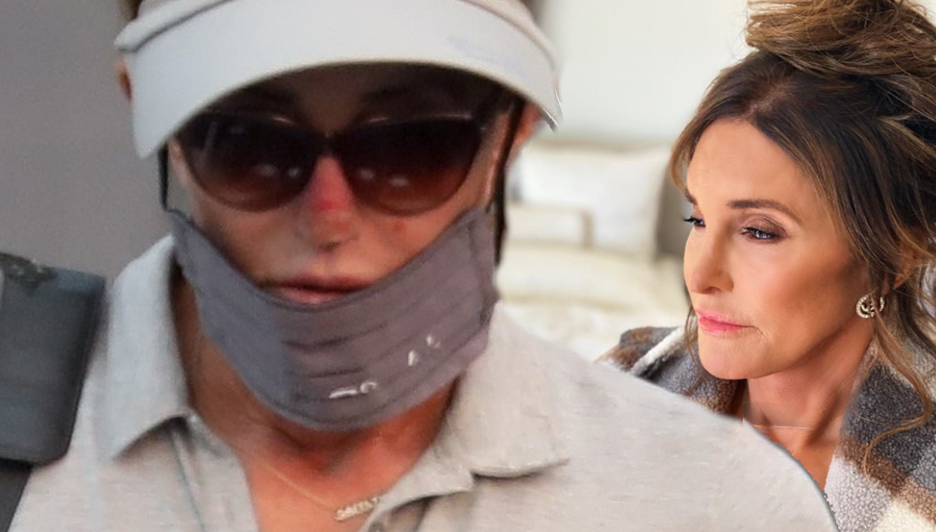 Caitlyn Jenner ma NIEPOKOJĄCE zmiany na skórze. To rak?