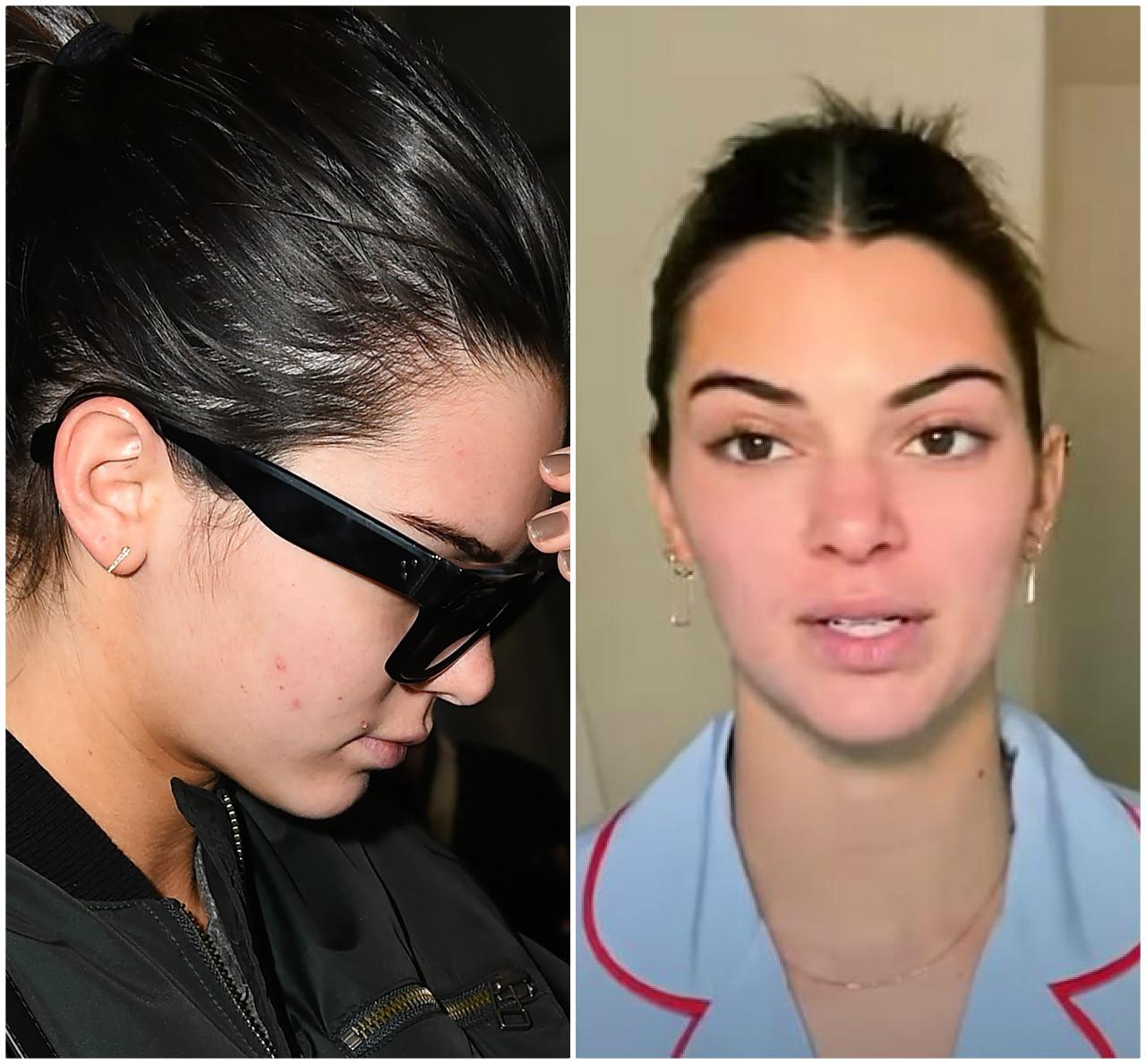 Kendall Jenner kiedyś i dziś - tak wyglądała jej cera, gdy miała problemy z trądzikiem.