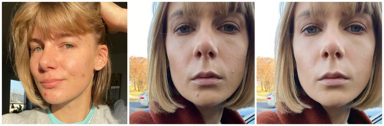 Marta Wierzbicka porównała wygląd cery na zdjęciach.