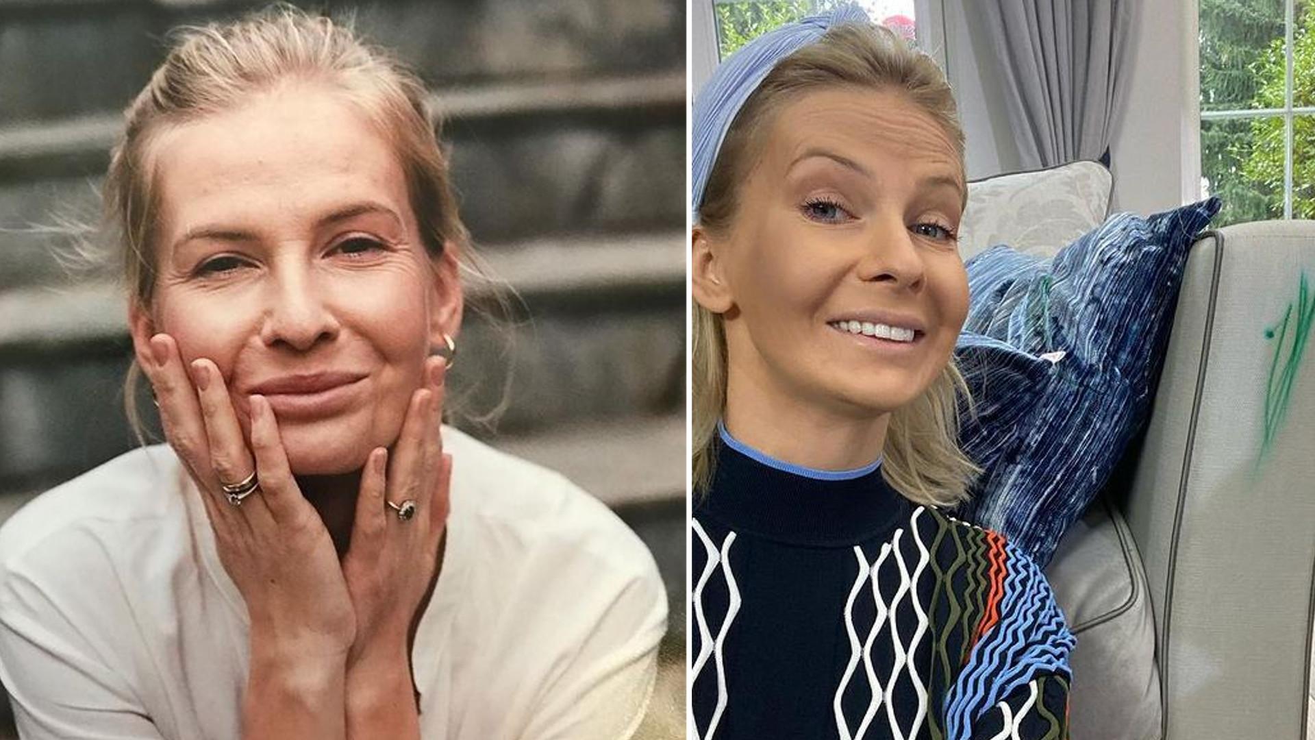 Edyta Pazura opowiedziała o walce z chorobą i pokazała przebarwienia na twarzy