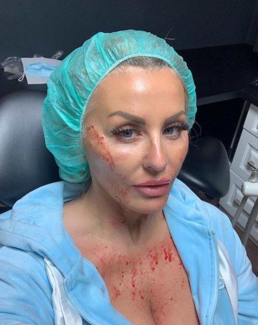 Dagmara Kaźmierska pokazała twarz po mezoterapii.