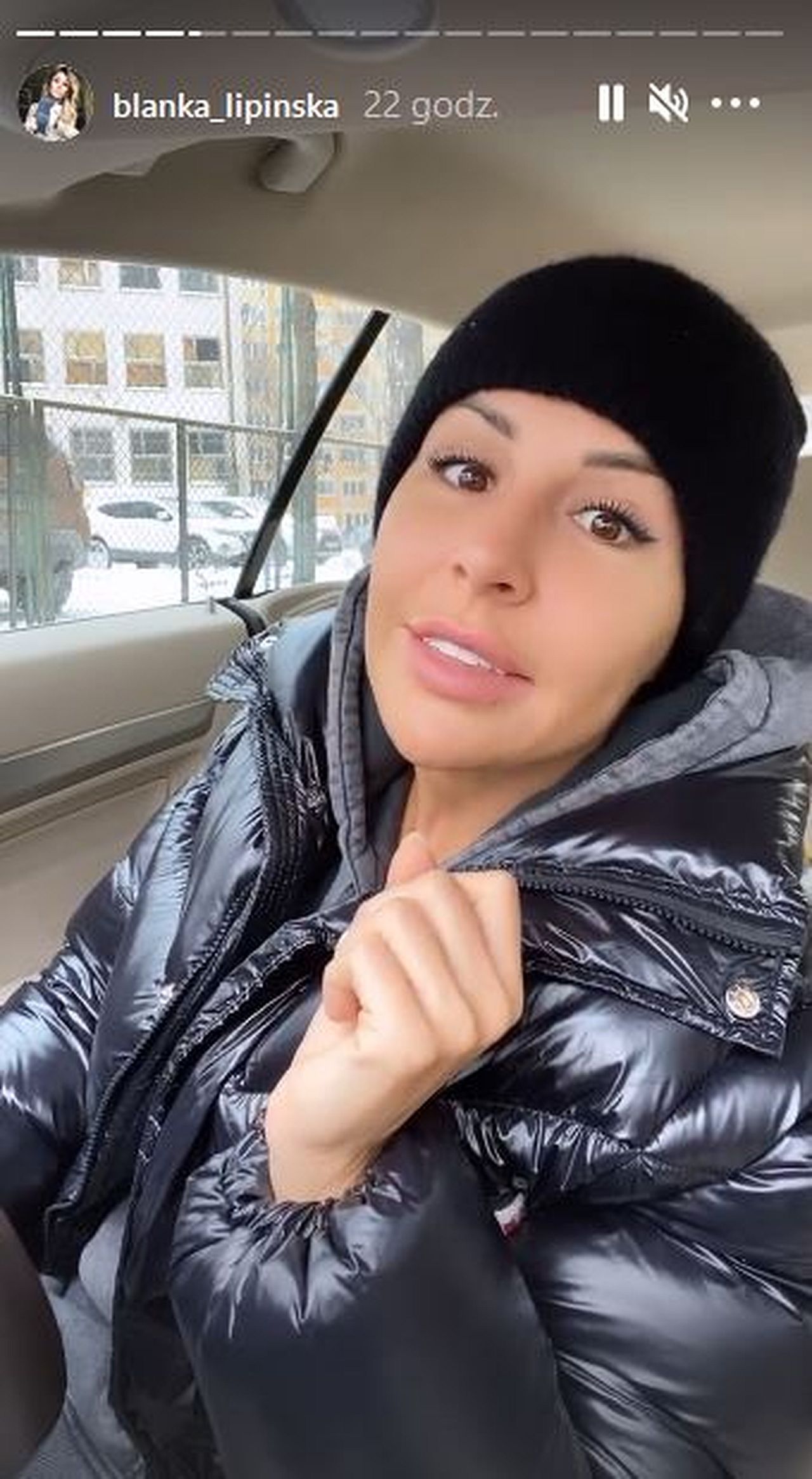 Blanka Lipińska zrobiła bonding zębów