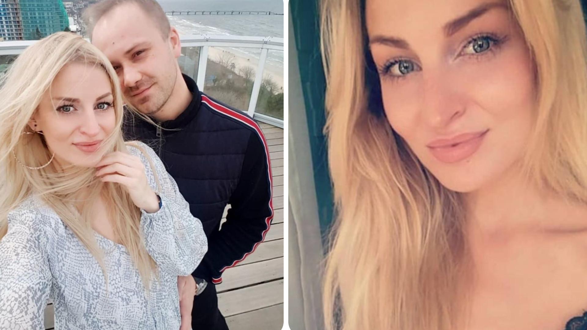 """Anita Szydłowska poddała się zabiegowi UPIĘKSZAJĄCEMU. """"Mąż zauważył dopiero na drugi dzień"""""""