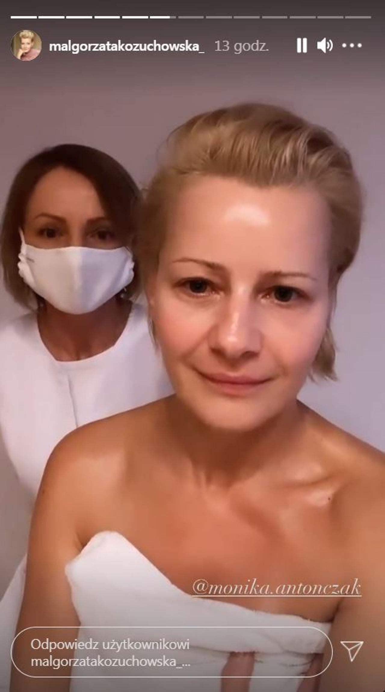 Małgorzata Kożuchowska bez makijażu i po masażu twarzy.