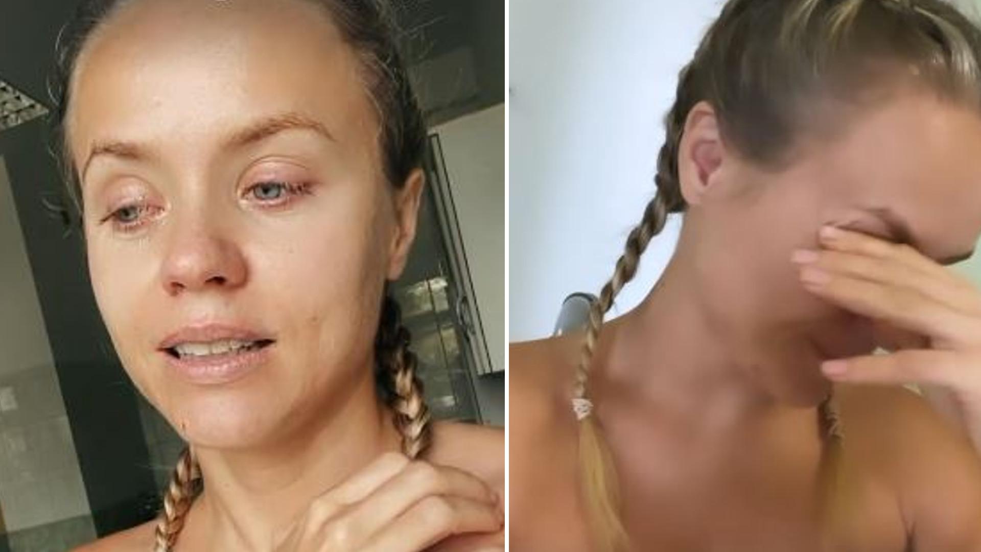 """Anna Skura przeszła OPERACJĘ: """"Nie będę wyglądać tak samo jak wcześniej"""""""