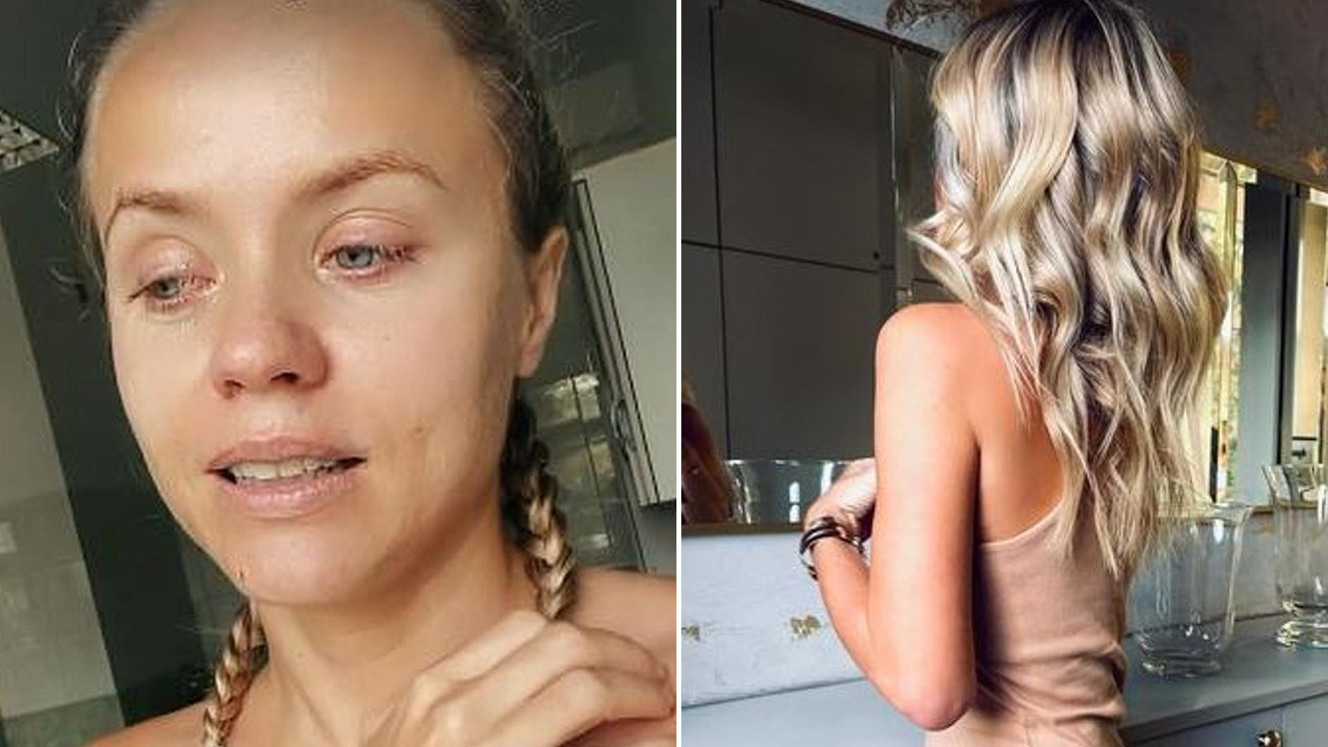 Anna Skura pokazuje, jak wygląda jej biust po operacji