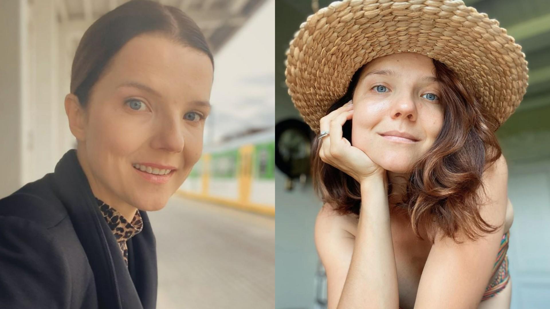 Joanna Jabłczyńska miała wypadek! Przez dłuższy czas nie będzie mogła wrócić do pracy